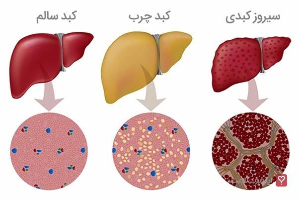 یکی از بیماری های شایع قرن بیست و یکم که عنوان معروف ترین بیماری در بین افرادی از سنین مختلف و همچنین افرادی با گرایشات غذایی و با وزن ها و توده های بدنی مختلف میباشد.