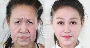 یک دختر ۱۵ ساله چینی که مدت ها از یک بیماری نادر رنج می برد به وسیله یک عمل جراحی زیبایی و با کمک مالی خیرین توانست ظاهری زیبا دوباره پیدا کند. او به علت بیماری نادری که به آن مبتلا بود ظاهر و پوست صورتش بسیار پیرتر و مسن تر از سنش بود و به علت این عارضه هرگز در انظار عمومی ظاهر نمیشد ولی بعد از عمل جراحی و بهبودی توانست برای اولین بار در بین عموم مردم قرار گرفته و آزادانه در اجتماع زندگی کند.