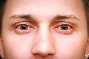 محققان تاکید دارند تمام کادر درمانی مراقبت کننده از این بیماران باید علاوه بر لباس، دستکش و کلاه مخصوص، عینک محافظ هم داشته باشند
