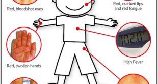 بیماری کاوازاکی نوعی بیماری است که باعث التهاب رگ های خونی می گردد و بیشتر در میان کودکان و خردسالان مشاهده میشود در ادامه با علل و عوامل ایجاد این بیماری بیشتر آشنا می شویم
