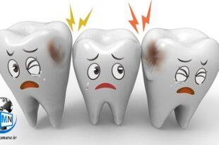یکی از درد های آزار دهنده به خصوص در شب برای هر فرد می تواند ابتلا به دندان درد باشد شما اگر از آن دسته افرادی هستید که با این مشکل روبرو شده اید در ادامه با راهکار های خانگی خلاص شدن از دندان درد با ما همراه باشید