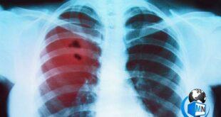 سرطان ریه و حنجره