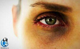 سیاهی زیر چشم