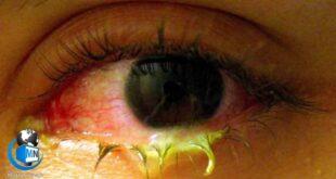 درمان عفونت های چشمی
