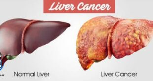 درمان بیماری سرطان کبد