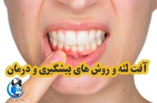 یکی از بیماری های شایع دهان آفت دهان یا لثه می باشد که با تغییر رنگ ظاهری در این ناحیه به وجود میآید در ادامه با این مطلب با ما همراه باشید تا به بررسی روش های پیشگیری و درمان آن بپردازیم