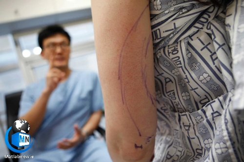 هر آنچه که در مورد جراحی پروتز زیبایی باید دانست + عوارض و مراقبت های لازم