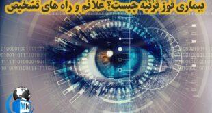 بیماری قوز قرنیه یک بیماری در ناحیه چشم می باشد که بر اثر تغییر شکل قرنیه به وجود میآیند در ادامه با بررسی علائم و راههای تشخیص و درمان این بیماری با ما همراه باشید