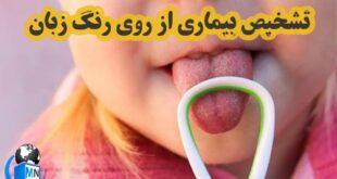 یکی از روش های تشخیص بیماری های مختلف بررسی و تشخیص از روی رنگ زبان می باشد در ادامه به بررسی این موضوع و ابعاد مختلف آن می پردازیم