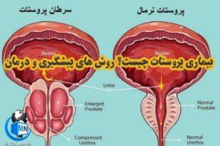 پروستات عضوی از دستگاه تناسلی مردانه می باشد که مایع منی تولید میکند در حال حاضر سرطان پروستات دومین سرطان شایع در مردان می باشد در ادامه به بررسی این بیماری و روش های پیشگیری و درمان آن میپردازیم