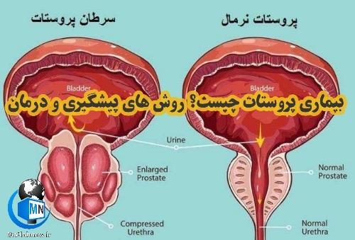 بیماری پروستات چیست؟ + روش های تشخیص، پیشگیری و درمان موثر