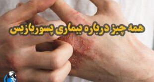 بیماری پوستی پسوریازیس یک بیماری خود ایمنی مزمن می باشد در ادامه با علائم این بیماری و همچنین راههای پیشگیری تشخیص و درمان آن با ما همراه باشید