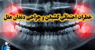 یکی از نگرانیهای افراد در بزرگسالی جراحی دندان عقل و کشیدن این دندان می باشد که گاهی منجر به عوارضی می شود در ادامه به بررسی عوارض کشیدن دندان عقل می پردازیم