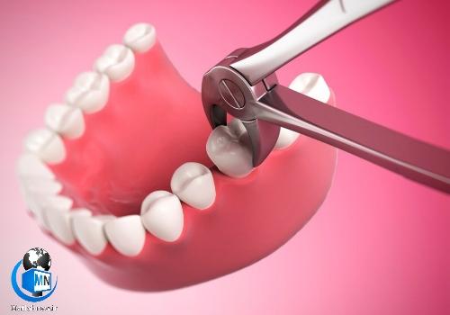 همه چیز درباره خطرات احتمالی کشیدن و جراحی دندان عقل + باید و نباید ها درباره دندان عقل