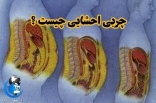 چربی های احشایی در داخل حفره شکم قرار دارند و تجمع بیش از حد چربی احشایی بسیار مضر می باشد و باعث به وجود آمدن برخی بیماریها میشود در ادامه به بررسی این موضوع و روش های کاهش و پیشگیری می پردازیم