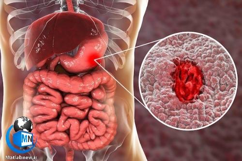 سندروم زولینگر الیسون چیست؟ + راه های شناسایی،علائم و درمان سریع